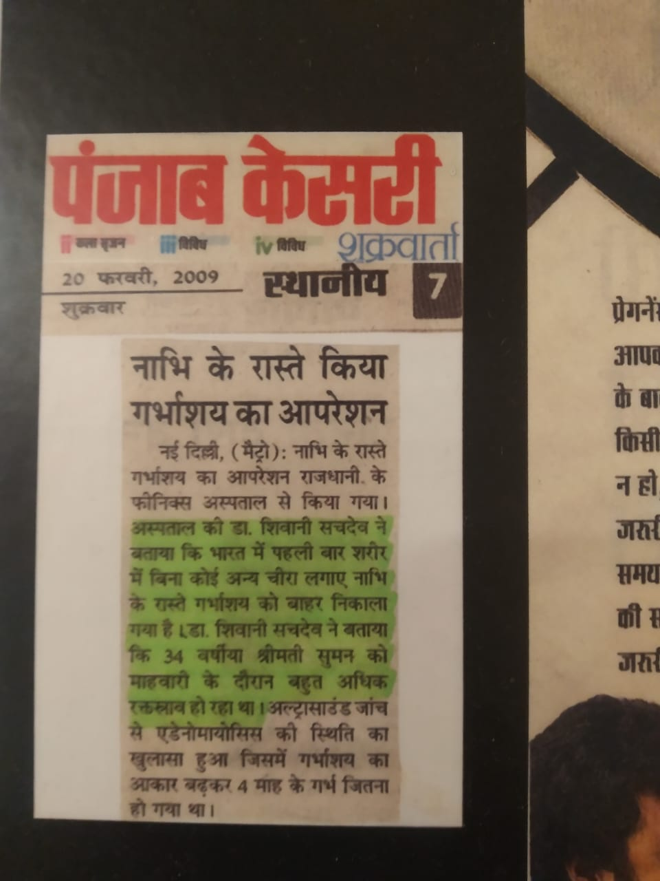 Dr Shivani Sachdev Gour Special and Successful Operation Cover by Punjab Kesari News